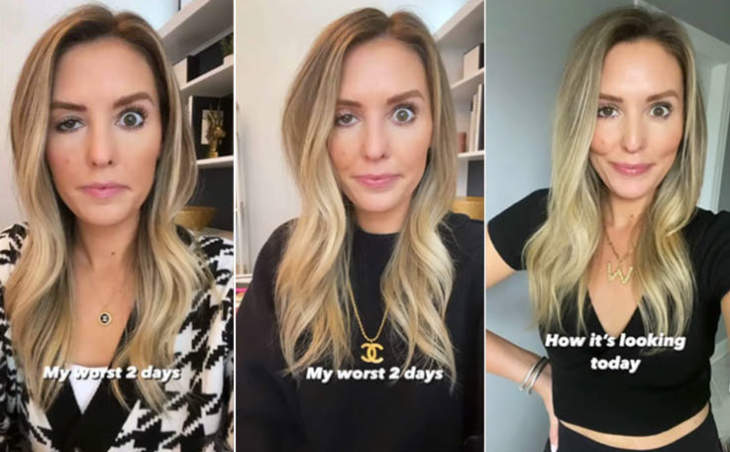 An Influencer Documented What Happens When Botox Goes Wrong